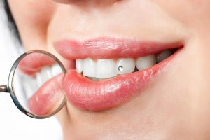 woman with white teeth with precious stone on it