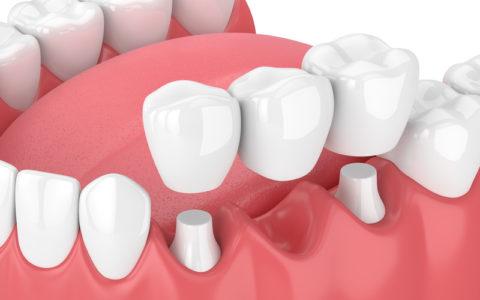 3d-Rendering des Kiefers mit Zahnbrücke über weißem Hintergrund