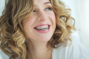 Frau, die mit einer festen Zahnspange lächelt.