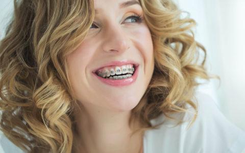 Frau, die mit einer Zahnspange im Mund lächelt