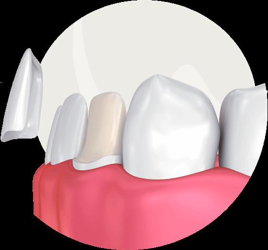 Veneers- schließen der Zahnlücken