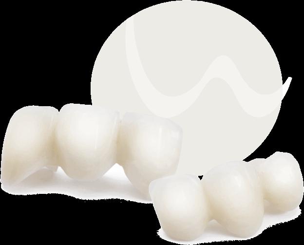 Zahnersatz für Lücken