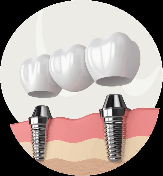 Zahnimplantate- für ein Zahnersatz