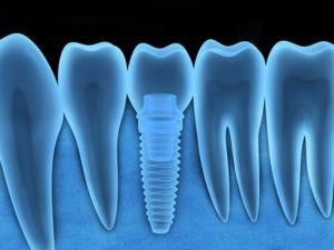 Röntgenbild von Zähnen.