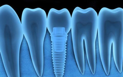 Röntgenaufnahme eines menschlichen Zahnimplantats (in 3D, Grafiken)