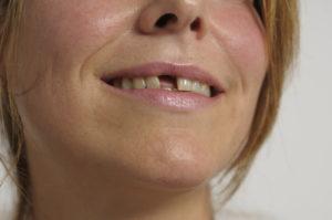 Frau mit Zahnlücke.