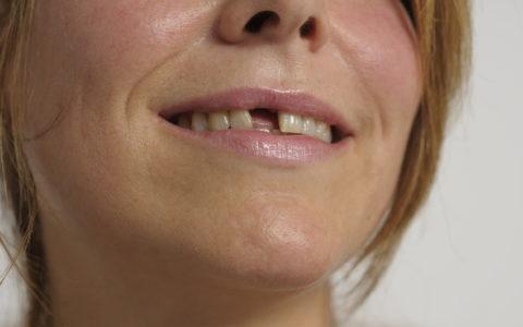 Zahnlücke im Mund