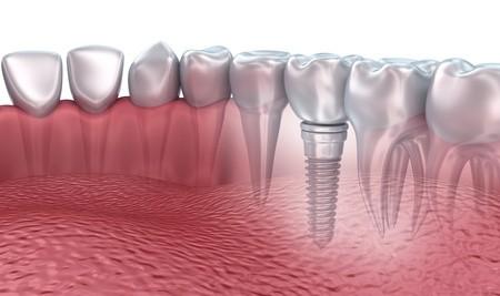 3d Unterkieferzähne und Zahnimplantat transparent machen isoliert auf weiß