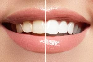 Lächelnder Mund. Linke Seite des Zahngebisses ist verfärbt, die rechte Seite ist strahlend weiß.