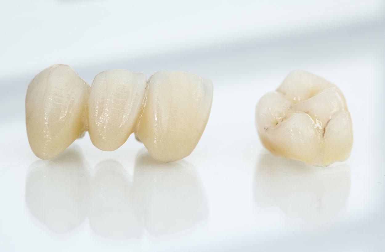 Vollkeramik Zahnersatz- festsitzender Zahnersatz