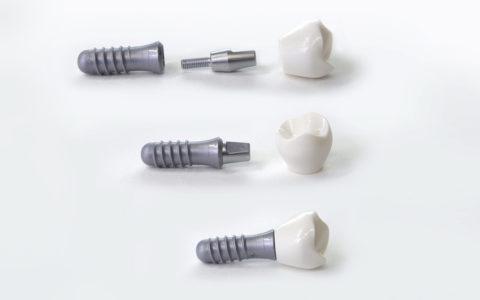 Zahnimplantat-Aufbau mit Schrauben