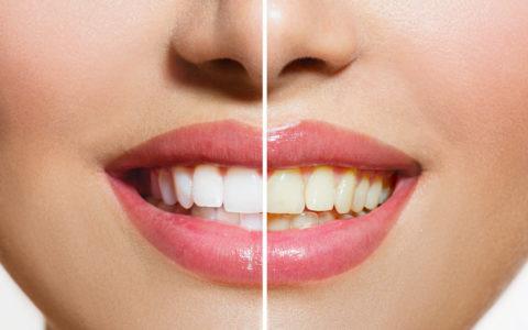 Frauenzähne vor und nach der Zahnaufhellung. Orale Pflege
