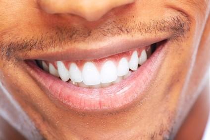 Afroamerikanischer Mann lächelt. Zahnmedizinische Versorgung.