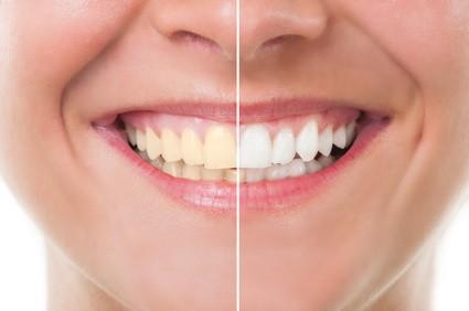 Frau lächelt vor und nach der Zahnaufhellung. Konzept für Zahnpflege und periodische Untersuchungen