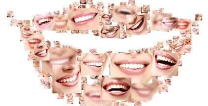 Collage von weißen Zähnen
