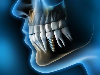 Modell eines Zahnimplantats im Gebiss