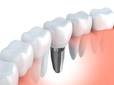Menschliches Zahnimplantat (in 3D-Grafiken)