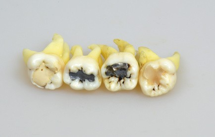 Zähne, die eine Zahnfüllung besitzen