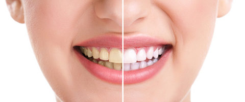 Zähne und Lächeln der Frau, Nahaufnahme, isoliert auf Weiß, Aufhellungsbehandlung