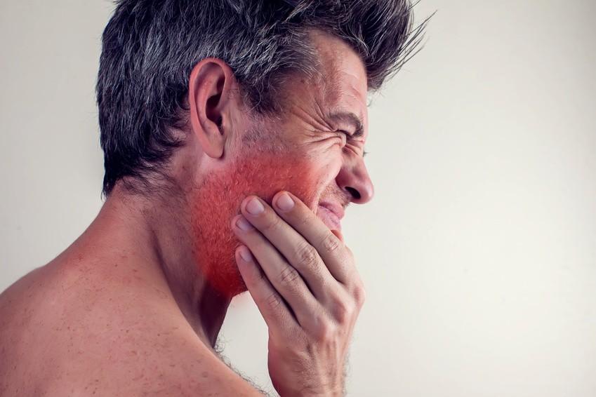 Nelkenöl zahnschmerzen