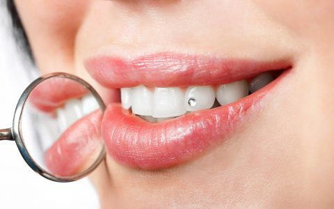 Frau mit weißen Zähnen mit Edelstein darauf