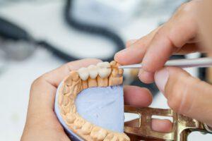 Zahnbrücken-Modell