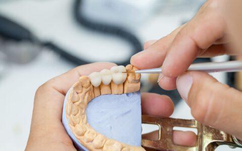 Ein Zahnbrücken-Modell wird festgehalten