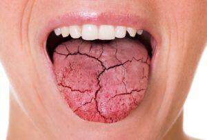 Junge Frau streckt ihre trockene Zunge raus