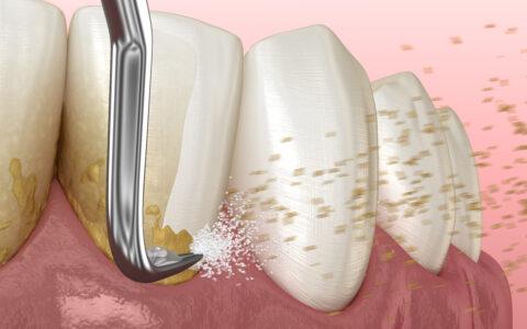 Graphische Abbildung von den Zähnen die gerade gereinigt werden