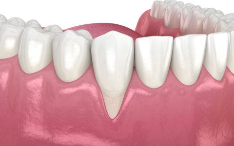 Grafische Abbildung von einem Gebiss, wo das Zahnfleisch zurückgegangen ist